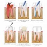 root canal treatment the steps