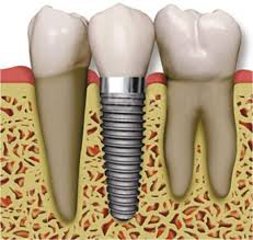 A dental implant in the jaw
