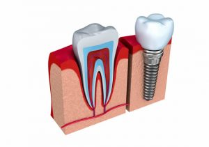 dental implant next to natural tooth