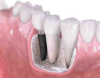 Dental implant in place